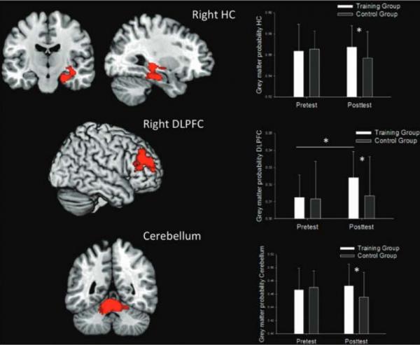 manfaat video game terhadap kapasitas otak  5 Manfaat Bermain Video Game Untuk Keterampilan Kognitif d7 35cd1d8b443b8aa718c5c0504c10c5e5 600x493