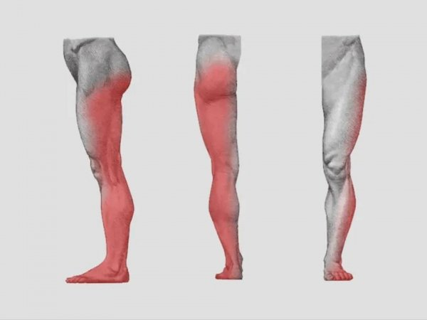 Efek Sciatica sakit punggung Duduk Kelamaan Dapat Menyebabkan Sakit Punggung Sciatica! sciatic 600x450